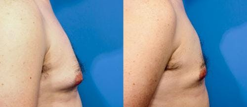 Male Breast Reduction Gallery - Patient 58219300 - Image 2