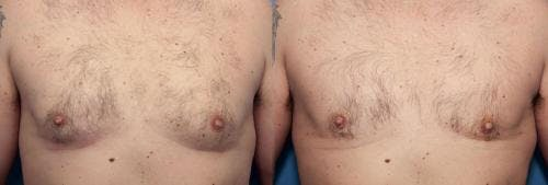 Male Breast Reduction Gallery - Patient 58219783 - Image 1