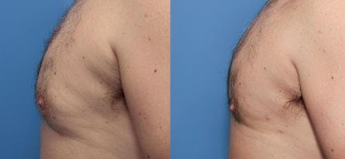Male Breast Reduction Gallery - Patient 58219783 - Image 2