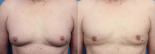 Male Breast Reduction Gallery - Patient 58220265 - Image 1