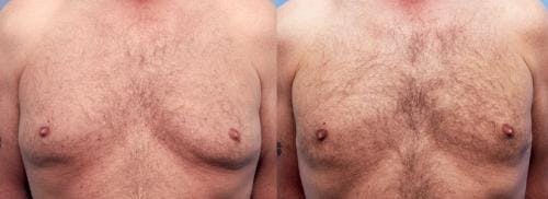 Male Breast Reduction Gallery - Patient 58220266 - Image 1