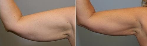 Liposuction Gallery - Patient 58470021 - Image 1