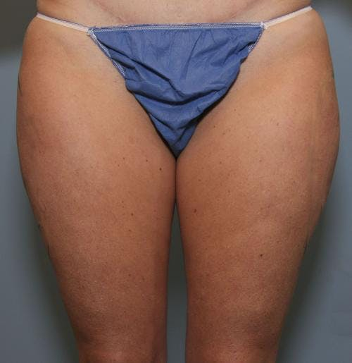 Liposuction Gallery - Patient 58470022 - Image 1