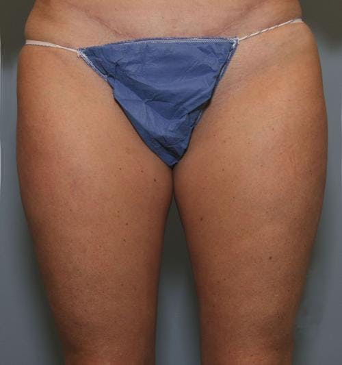 Liposuction Gallery - Patient 58470022 - Image 2