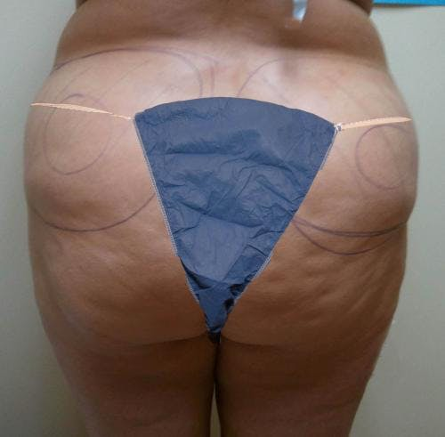 Liposuction Gallery - Patient 58470023 - Image 1