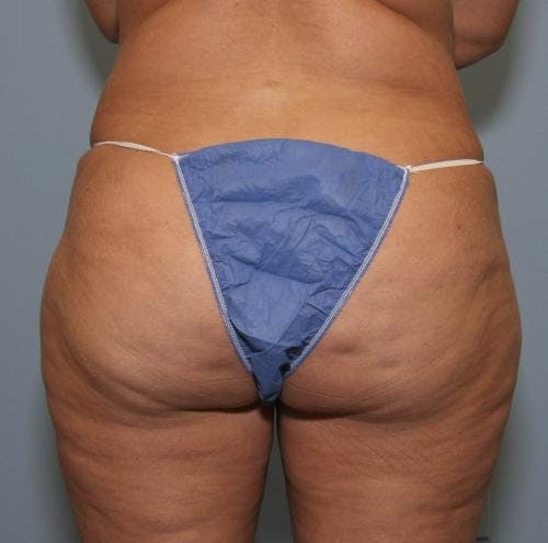 Liposuction Gallery - Patient 58470023 - Image 2