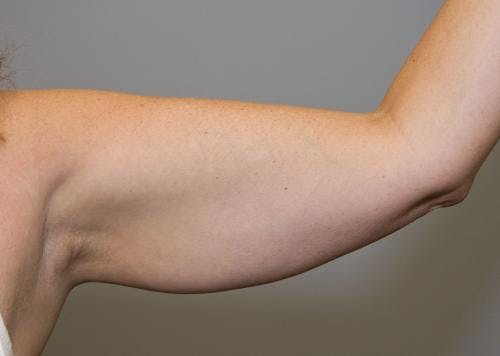 Liposuction Gallery - Patient 58470026 - Image 1