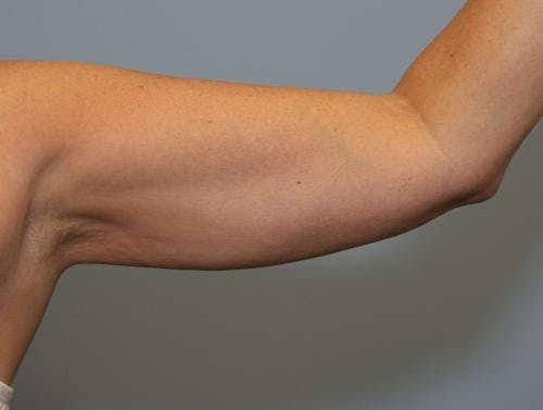 Liposuction Gallery - Patient 58470026 - Image 2