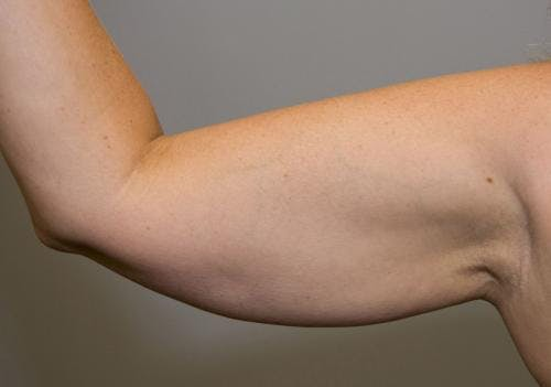Liposuction Gallery - Patient 58470026 - Image 3