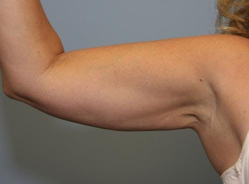 Liposuction Gallery - Patient 58470026 - Image 4