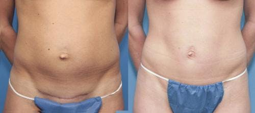 Tummy Tuck Gallery - Patient 58470037 - Image 1
