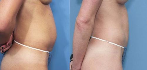 Tummy Tuck Gallery - Patient 58470037 - Image 2