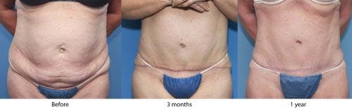 Tummy Tuck Gallery - Patient 58470044 - Image 1