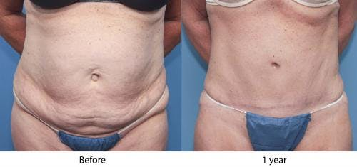 Tummy Tuck Gallery - Patient 58470044 - Image 2