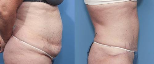 Tummy Tuck Gallery - Patient 58470044 - Image 3