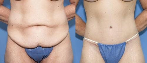 Tummy Tuck Gallery - Patient 58470045 - Image 1