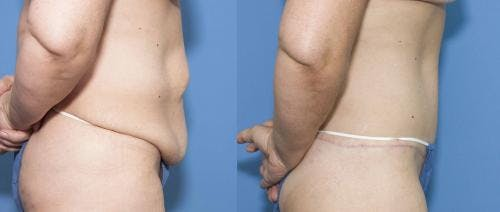 Tummy Tuck Gallery - Patient 58470045 - Image 2