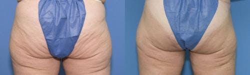 Tummy Tuck Gallery - Patient 58470045 - Image 3