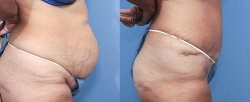 Tummy Tuck Gallery - Patient 58470046 - Image 2