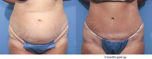 Tummy Tuck Gallery - Patient 58470046 - Image 1