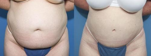 Tummy Tuck Gallery - Patient 58470047 - Image 1