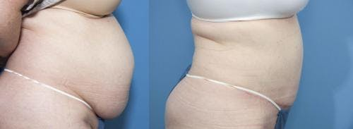 Tummy Tuck Gallery - Patient 58470047 - Image 2