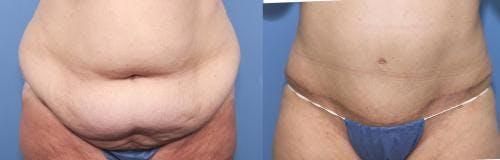 Tummy Tuck Gallery - Patient 58470048 - Image 1