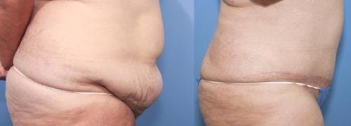 Tummy Tuck Gallery - Patient 58470048 - Image 2