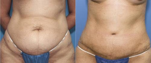Tummy Tuck Gallery - Patient 58470049 - Image 1