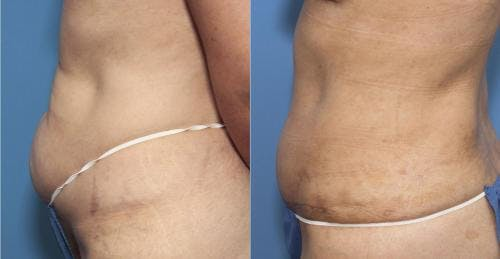Tummy Tuck Gallery - Patient 58470049 - Image 2