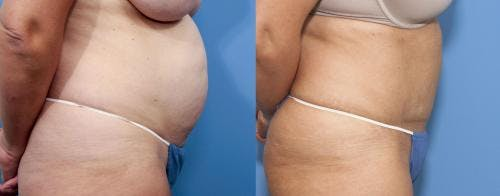 Tummy Tuck Gallery - Patient 58470050 - Image 2