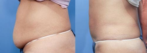 Tummy Tuck Gallery - Patient 58470052 - Image 2