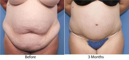 Tummy Tuck Gallery - Patient 58470054 - Image 1