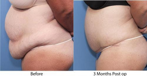 Tummy Tuck Gallery - Patient 58470054 - Image 2