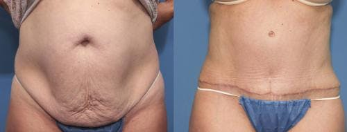 Tummy Tuck Gallery - Patient 58470056 - Image 1