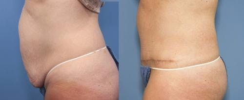Tummy Tuck Gallery - Patient 58470056 - Image 2