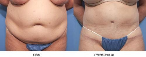 Tummy Tuck Gallery - Patient 58470057 - Image 1