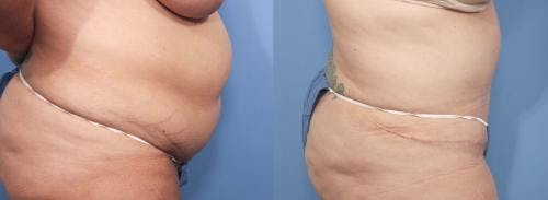 Tummy Tuck Gallery - Patient 58470057 - Image 2