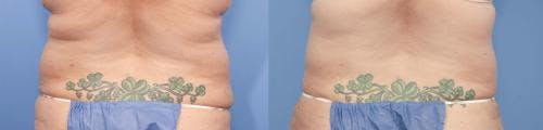 Tummy Tuck Gallery - Patient 58470057 - Image 3
