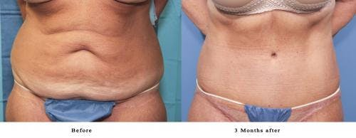 Tummy Tuck Gallery - Patient 58470058 - Image 1