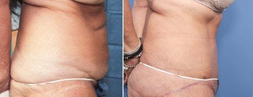Tummy Tuck Gallery - Patient 58470058 - Image 2