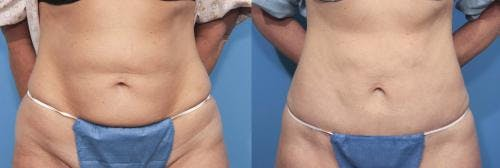 Tummy Tuck Gallery - Patient 58470059 - Image 1