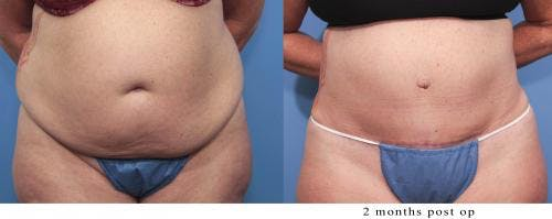 Tummy Tuck Gallery - Patient 58470061 - Image 1