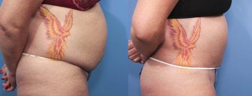 Tummy Tuck Gallery - Patient 58470061 - Image 2