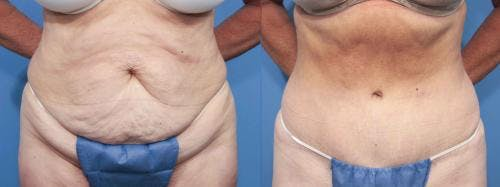 Tummy Tuck Gallery - Patient 58470062 - Image 1