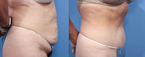 Tummy Tuck Gallery - Patient 58470062 - Image 2