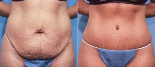 Tummy Tuck Gallery - Patient 58470063 - Image 1