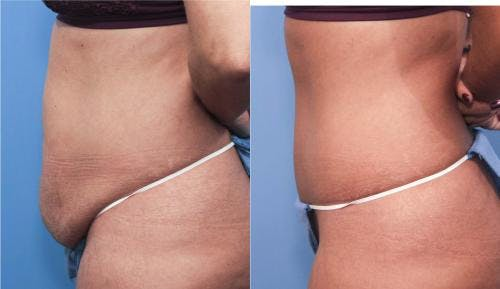 Tummy Tuck Gallery - Patient 58470063 - Image 2