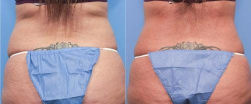 Tummy Tuck Gallery - Patient 58470063 - Image 3