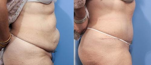 Tummy Tuck Gallery - Patient 58470064 - Image 2